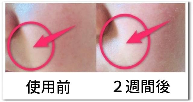 アテニアドレスリフト使用後の肌画像